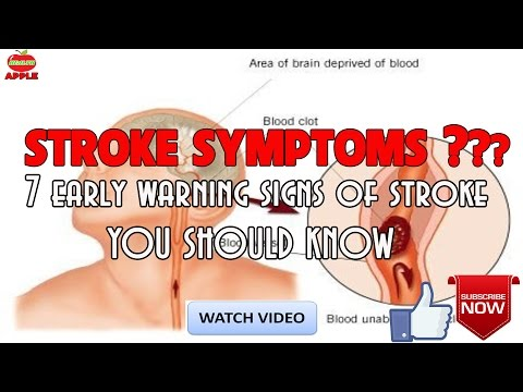 Stroke symptoms : 7 early warning signs of stroke everyone SHOULD KNOW