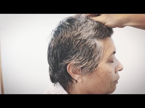 Post Stroke Ataxia  Instant Improvement Scalp Acupuncture