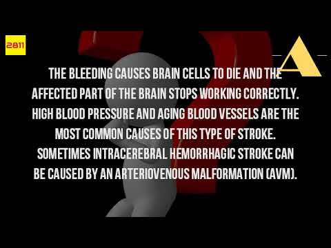 What Are The Causes Of A Hemorrhagic Stroke?