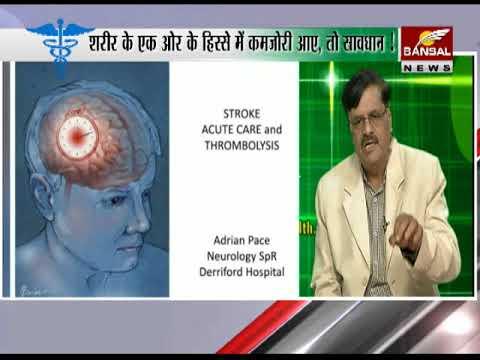 Ayushman – Brain Stroke Ke Bare Me Le Salah