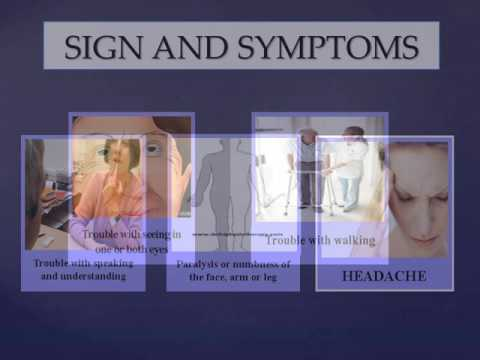 Stroke Rehabilitation And Daycare