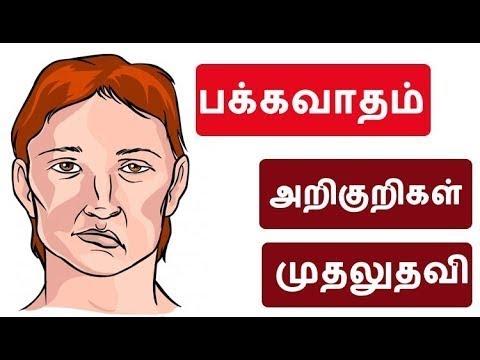 பக்கவாதம் ? (Stroke) – Everything You Need To Know – Symptoms,cause and Treatments options – Tamil
