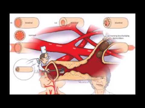 Medicine stroke (cerebrovascular accident (CVA)) Made by VietNamese's  +84 935146069