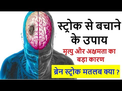 What is brain stroke in simple hindi language