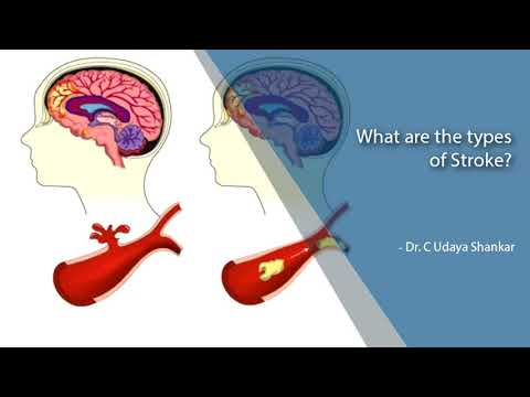 What are the types of Stroke?-Dr. C Udaya Shankar