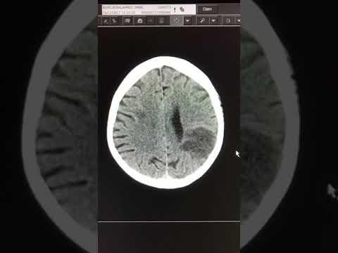 Acute cardio-embolic stroke