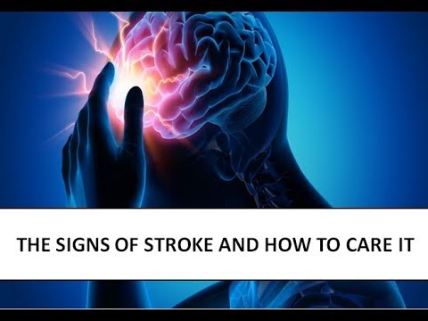 THE SIGNS OF STROKE AND HOW TO CARE IT- Health Partners