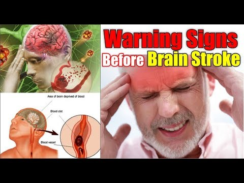 Warning Signs Of Stroke – Signs Before A  Stroke