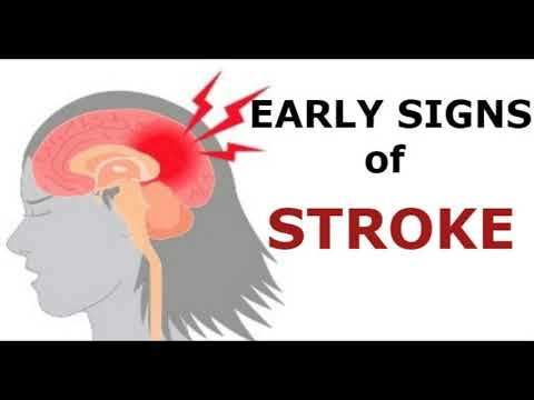 These Are The 5 Signs Of Stroke One Should Know Before It's Too Late