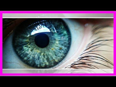 Eye stroke patients often don't get proper care