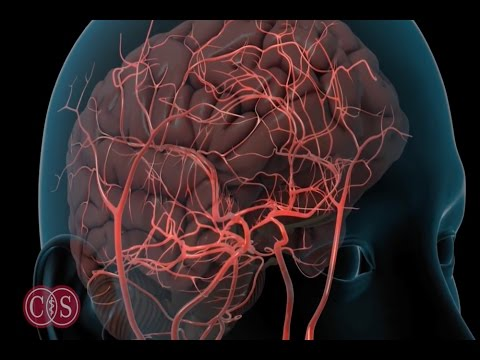 Symptoms of Stroke and Migraine  Cedars Sinai